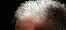 cause capelli bianchi precoci