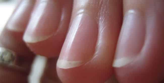 malattie unghie